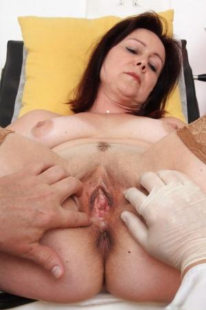 Hairy Gyno Exam Porn